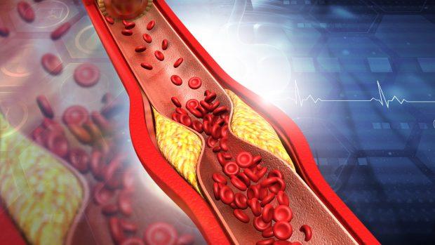 Colesterolo Ldl e Hdl: la differenza e i rischi