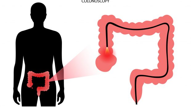 La preparazione e la dieta prima della colonscopia, esame fondamentale per prevenire il cancro al colon